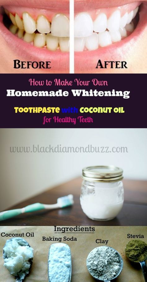 How to Make Your Own Homemade Natural Whitening Tooth Paste with Coconut Oil for Healthy Teeth - Ingredients = baking soda , coconut oil , activated charcoal , hydrogen peroxide ,sea salt