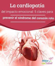 La cardiopatía del impacto emocional: 5 claves para prevenir el síndrome del corazón roto  El síndrome del corazón roto es una cardiopatía con los mismos síntomas que un infarto. Ahora bien, su índice de mortalidad es muy bajo y además, suele tener un género favorito: la mujer.