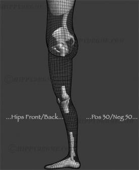 #HippyDrome.com Hip Deformation Front/Back Wires