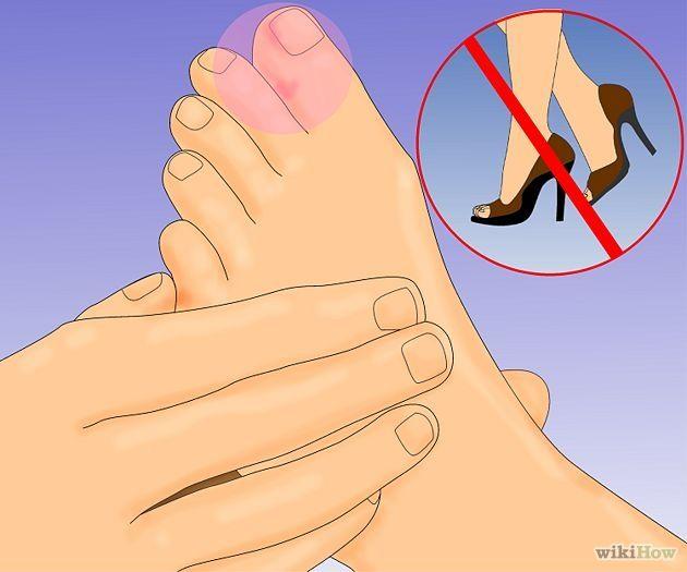 Heal a Broken Toe Step 1.jpg