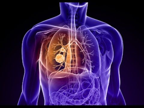 lung cancer symptoms - WATCH VIDEO HERE -> http://bestcancer.solutions/lung-cancer-symptoms-2    *** signs of lung cancer ***   lung cancer symptoms Welcome to our channel to review, on Autonomous Sensory Meridian Response that can cope with us for surgery for cancer pain that is transmitted through the blood, there is a more complete solution please visit here:  Video credits to the...
