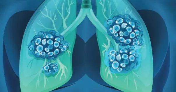 """Scienziati: """"Dieta a basso contenuto di carboidrati """"fa morire di fame"""" il cancro"""""""