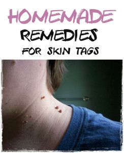 Homemade Remedies for Skin Tags