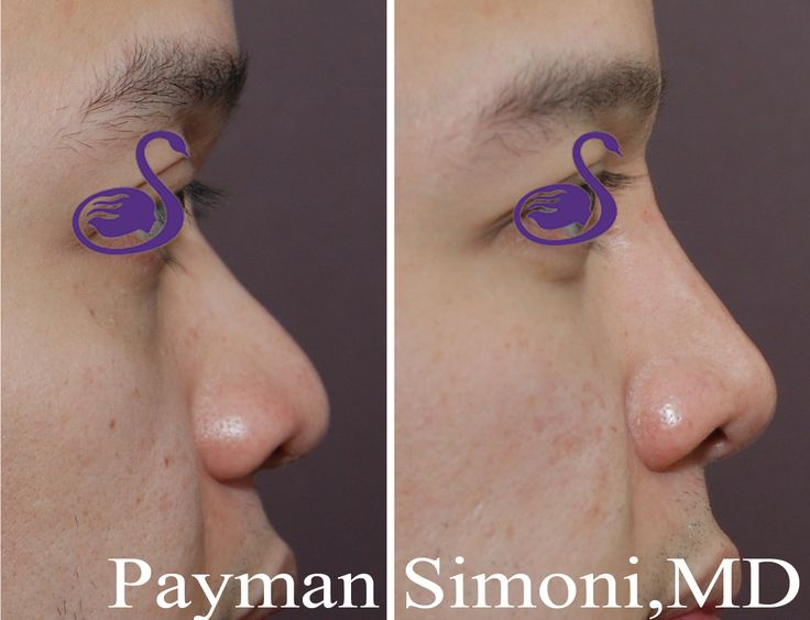 Korean nose jobs are a special skill set perfected by the