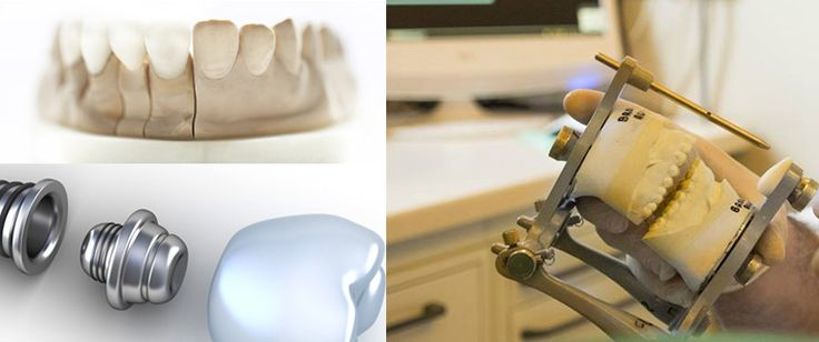 http://www.degidi.it/ Hai un problema di denti mancanti e non sai se è più opportuno sostituirli con un ponte o un #ImpiantoDentale? Scopri quale è meglio scegliere. Visita adesso!
