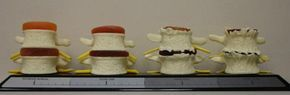 Spinal Decompression Therapy helps Desgenerative Spinal Discs