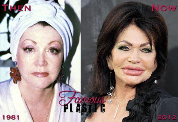 Jackie Stallone plastic surgery 2012