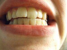 A pesar de lo que digan los dentistas: LAS CARIES SE PUEDEN CURAR