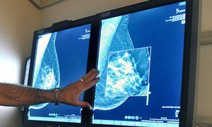 """""""Mammograms may be missing some breast cancers, study shows"""", """"Additional screening techniques can detect more cases of breast cancer in some women,"""", Press Association; Wednesday 9 March 2016 - """"""""These results mean that tomosynthesis detected an additional four breast cancers per 1,000 women screened and ultrasound detected an additional seven breast cancers per 1,000."""""""""""
