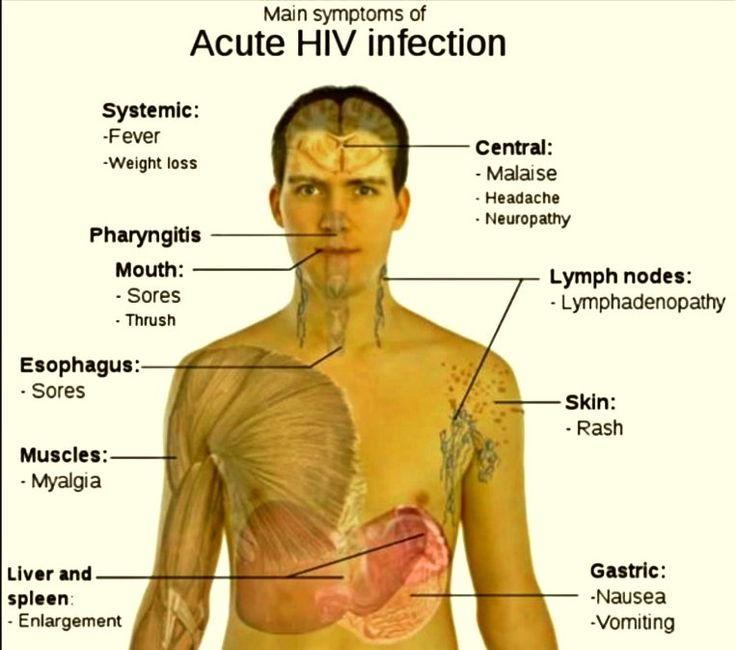 Recognizable Symptoms of HIV/ AIDS
