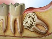 DISCOVER DENTISTS® Horizontal Complete Bony Impaction http://DiscoverDentists.com