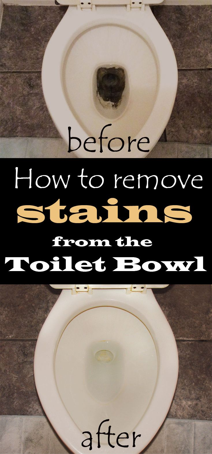 Learn how to remove stains from the toilet bowl.