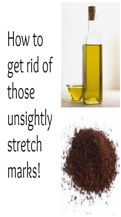 how to get stretch marks off breast