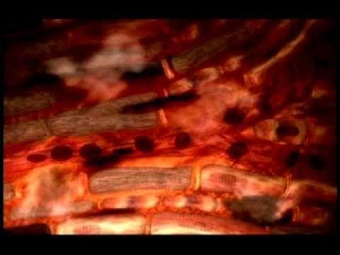 Tolle visuelle Darstellung von Verkalkung und darus resultierender Herzinfarkt▶ What happens during a Heart Attack? - YouTube