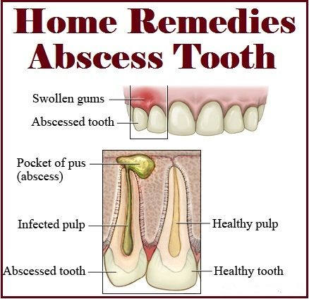 Home Remedies For Abscess Tooth Nature S Child Pinterest