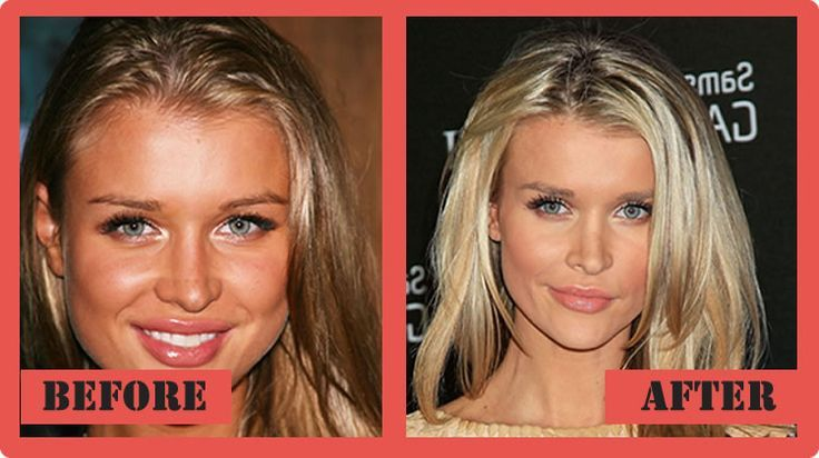 Joanna Krupa Plastic Surgery Before And After Joanna Krupa Plastic Surgery #Joan…
