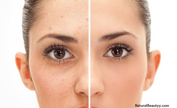 Cure Blemishes Naturally