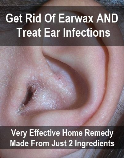This home remedy is actually better than some of the over-the-counter solutions you can purchase from the pharmacy; most of the drops for swimmer's ear (mild infection) contain just isopropyl alcohol to dry and wash out the ear, but the home remedy below...