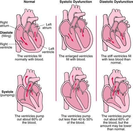 Heart Failure-I have both diastolic and systolic dysfunction!