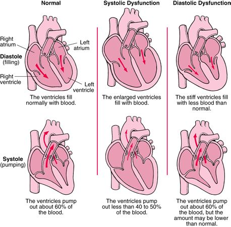 Heart Failure-I have both diastolic and systolic dysfunction!