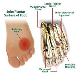 Symptoms and Treatments for early stage Morton's neuroma