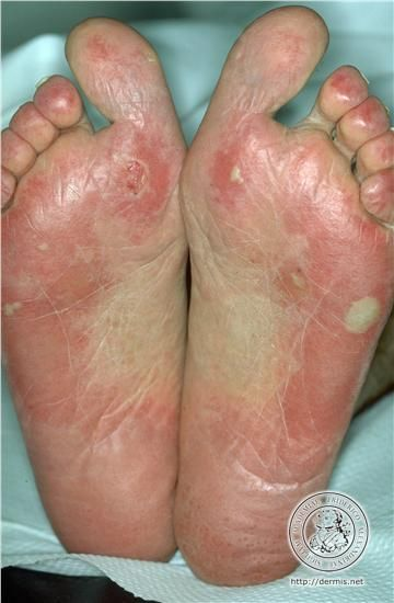 diagnosis: Systemic Lupus Erythematosus