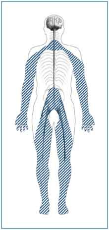 Outline of a body with shaded lines showing the location of nerves affected by peripheral neuropathy. Peripheral nerves are in the toes, feet, legs, hands, and arms.