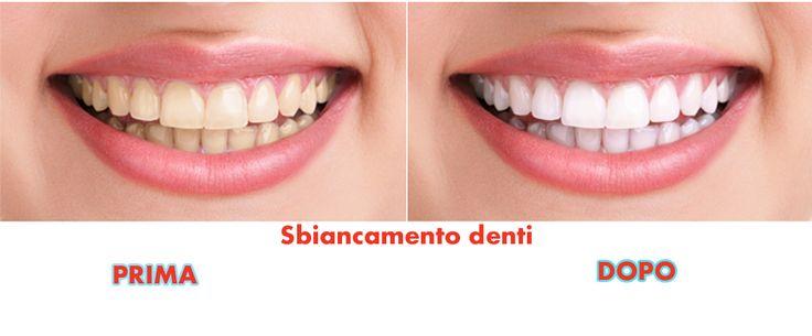 Vieni a conoscere tutti i metodi per lo sbiancamento dei denti ! Scopri come efficacemente lo sbiancamento denti è fatto i prodotti ei metodi giusti !