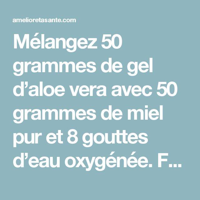 Mélangez 50 grammes de gel d'aloe vera avec 50 grammes de miel pur et 8 gouttes d'eau oxygénée. Faites-vous un bain de bouche à l'aide de cette préparation deux fois par