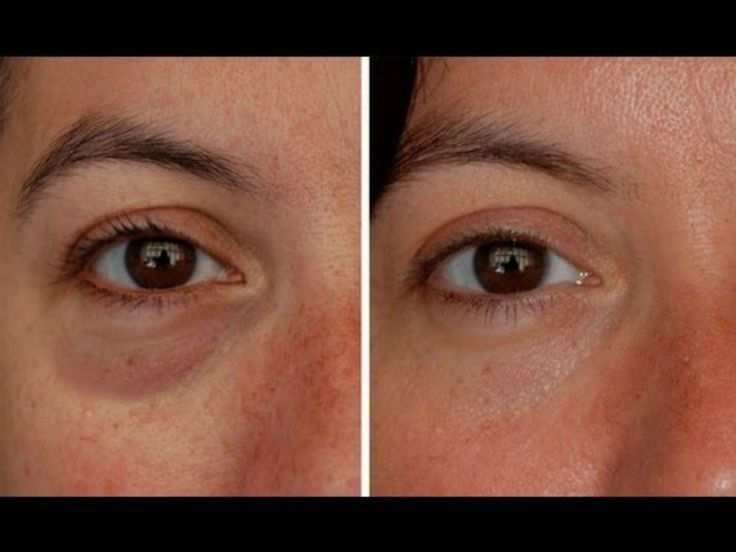 We can all agree that under eye bags are an annoying thing that have. They might go unnoticed on a regular day, but when you're very tired or feeling under the weather, those bags can make a terrible change in your face. Luckily, these bags are extremely...