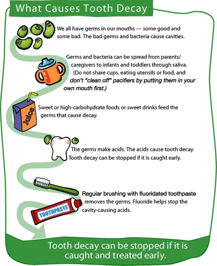 How to Recognize Early Signs of Tooth Decay?