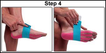 Kinesio tape for plantar fasciitis