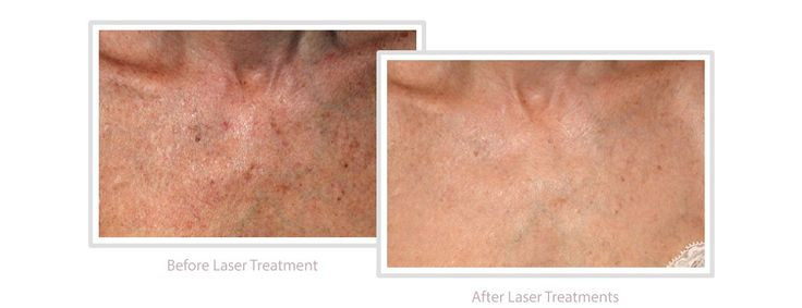 Laser treatment can be effective for treating pigmentation conditions including brown marks on the skin, sun spots and freckles and age spots.