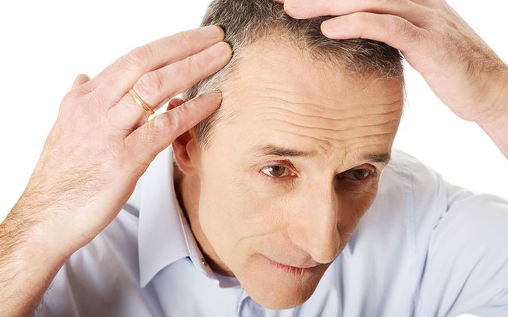 Hair Restoration and Hair Transplant are the superb method to combat over Hair loss - http://www.hairtransplantturkey.co/wp-content/uploads/2015/06/hair-restoration-and-hair-transplant.jpg