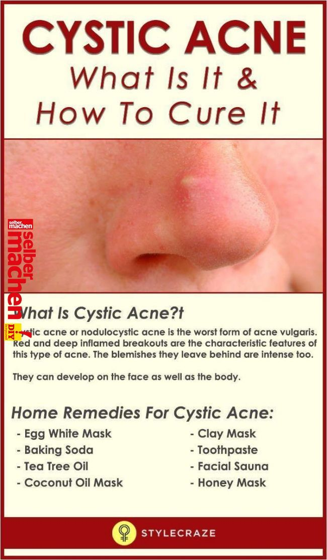 Learn Fast And Effective Treatments For Zits Cystic Acne