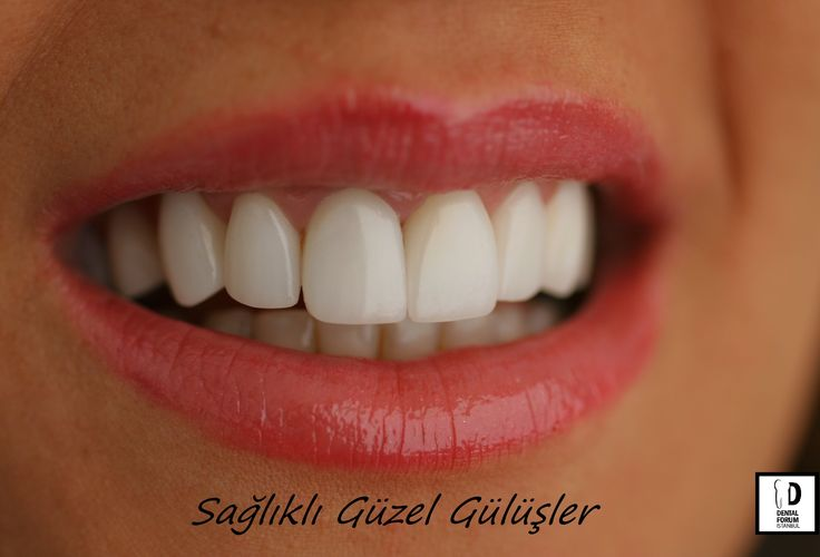 Sağlıklı Güzel Gülüşler - Healthy Beautiful Smiles.