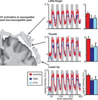 Pain and Plasticity: Is Chronic Pain Always Associated with Somatosensory Cortex Activity and Reorganization?