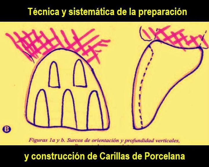 Técnica y sistemática de la preparación y construcción de Carillas de Porcelana   OVI Dental