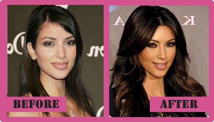 Kim Kardashian plastic surgery before and after Kim Kardashian Plastic Surgery #KimKardashianplasticsurgery #KimKardashian  #gossipmagazines