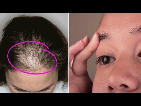 Este aceite es increíble para el engrosamiento y el crecimiento del cabello , pestañas y cejas - YouTube