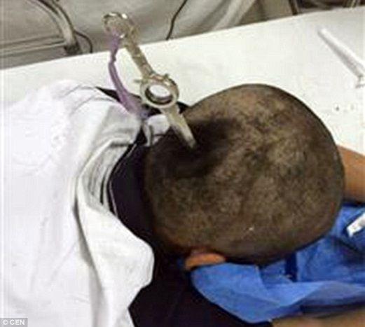 Ajaib! Budak perempuan ini terselamat lepas rakan sekelas baling pisau terpacak di kepalanya!   Ajaib! Budak perempuan ini terselamat lepas rakan sekelas baling pisau terpacak di kepalanya!  Seorang budak perempuan terselamat selepas rakan sekelasnya membaling pisau yang terpacak di kepalanya secara tidak sengaja.  Mangsa dikenali sebagai Lin 12 meninggalkan taman di Dongguan selatan China bersama rakannya pada 16 Mei lalu selepas bertengkar dengan seorang budak lelaki berusia 13 tahun…