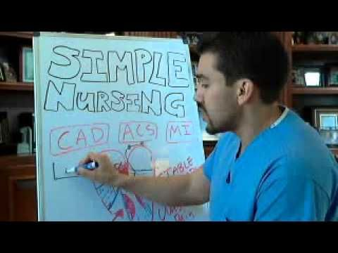 Stress Test Cardiac (ST depression, Nursing Considerations P - YouTube