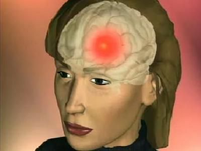 """HowStuffWorks """"How to find pressure points to cure headaches"""""""