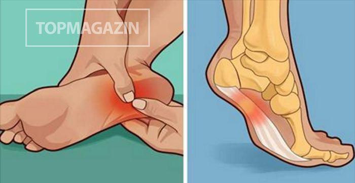 Pri bolesti chodidiel je veľmi dôležitá plantárna fascia, oktorej väčšina ľudí ani netuší. Je to tenký väz, ktorý spája našu pätu sprednou časťou nohy. Ak je poškodený, spôsobuje bolesť astav nazývaný plantárna fascitída. Štúdie zo Spojených štátov tvrdia, že plantárna fascitída stojí za bolesťou nôh uviac než polovice Američanov. Najviac postihnutými skupinami sú športovci, tehotné …