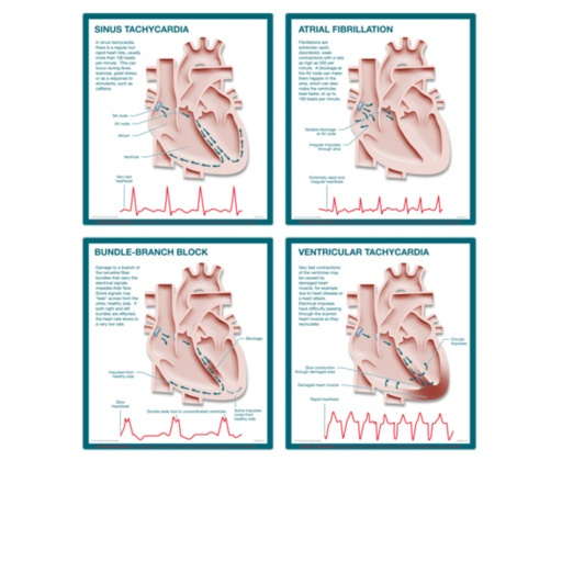 circulatory system lecture guide Circulatory system study guide a stethoscope is used to listen to heart sounds lub dub, lub dub is the sound made by the valves in the heart the valves keep the.