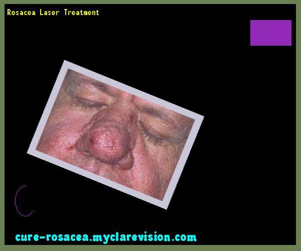 Rosacea Laser Treatment 183921 - Cure Rosacea