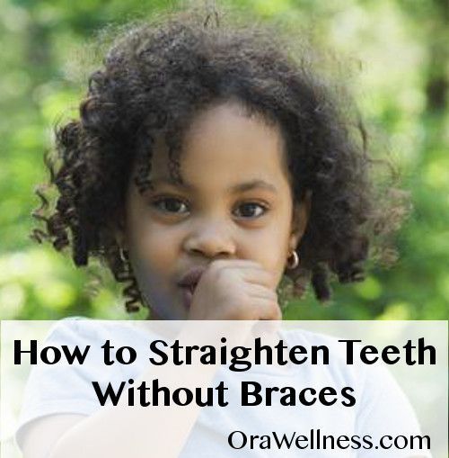 How to Straighten Teeth Without Braces | OraWellness Blog