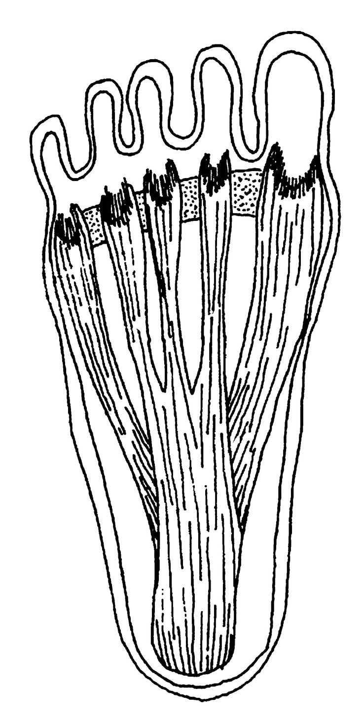 Tons of foot pain remedies and ideas. Morton's Neuroma/Morton's Toe, Achilles Tendinitis, etc