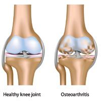 Osteoarthritis hip problems can appear in those who are overweight. Certain types of sports and athletics can also lead to osteoarthritis hip problems.