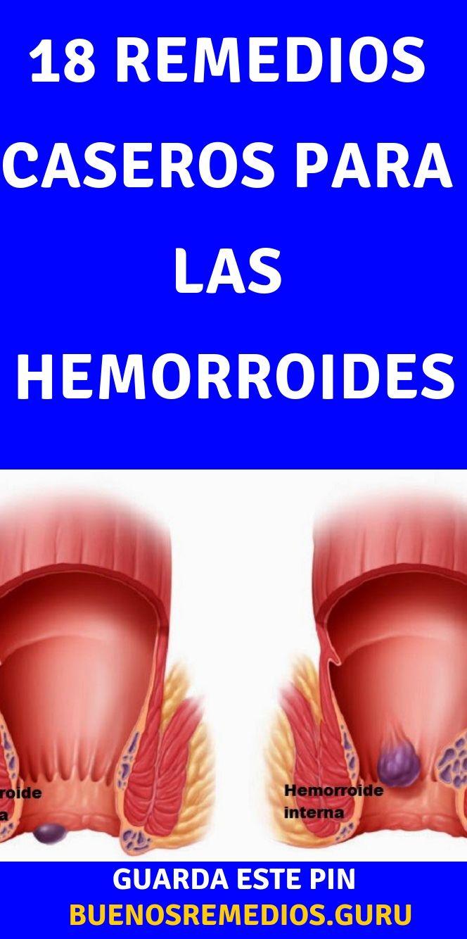 Remedios Caseros Para Las Hemorroides